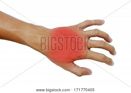 Inflame muscle on the back hand,Inflame muscle on the hand