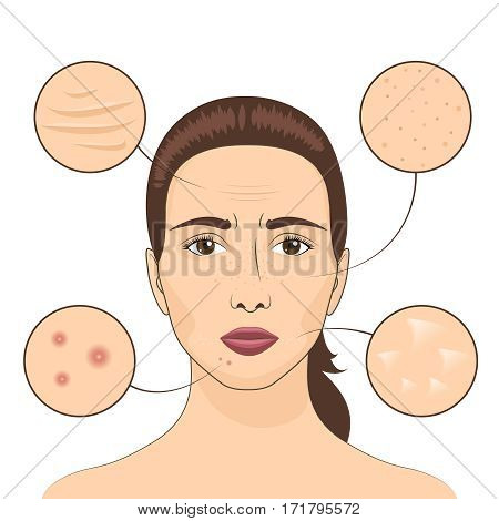 Woman skin problem vector illustration. Female face with skins problematic areas. Problem with skin face, facial care and treatment