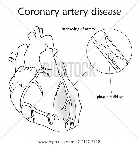 Coronary Artery Disease. Blocked Artery, Damaged Heart Muscle. Anatomy Flat Illustration. Outline Im