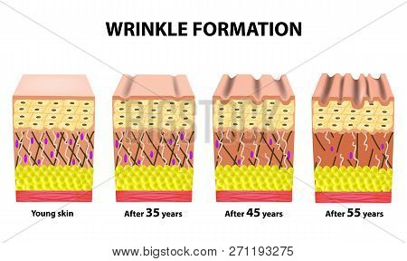Stages Of Wrinkles At Different Ages. Anatomical Structure Of The Skin. Elastin, Hyaluronic Acid, Co
