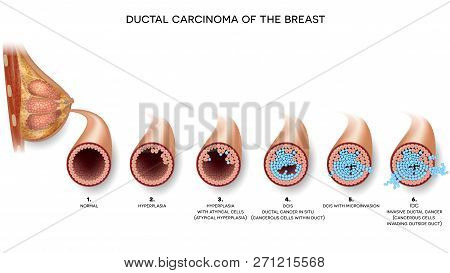 Ductal Carcinoma Of The Breast Cross Section Anatomy, Detailed Anatomy Illustration. At The Beginnin