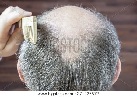 Baldness and hair of an aging man. Male head with thinning gray hair or alopecia poster