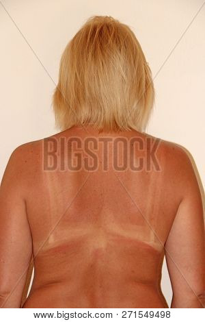 Human back burnt after sunburn. Scald on back from sun's beams. Burns on female back after visiting beach. Trace from bra after tan on back of woman poster