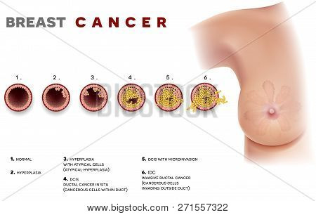 Breast Cancer Ductal Carcinoma Of The Breast, Detailed Medical Illustration. At The Beginning Normal