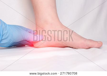 A Doctor In Medical Gloves Examines A Patients Heel Spur, Pain In The Foot And Heel, Plantar Fasciit