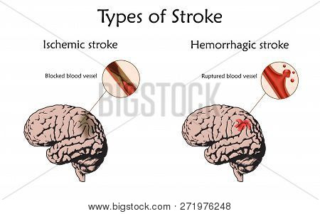 Stoke Types Poster, Banner. Hemorrhagic, Ischemic. Vector Medical Illustration. White Background, An