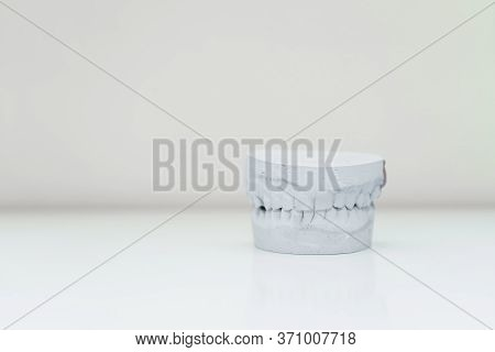 Plaster Cast Of The Jaw On A Table In A Bright Room.