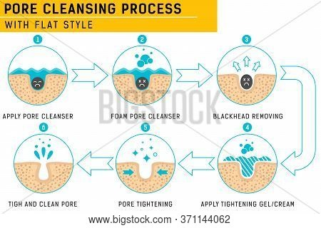 Blackheads Removing And Pore Cleansing Process. Pore Cleansing Process With Fresh Color. Acne Or Bla