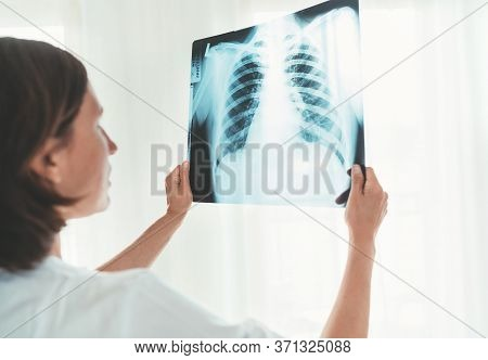 Mature Male Doctor Portrait Examining The Patient Chest X-ray Film Lungs Scan At Radiology Departmen