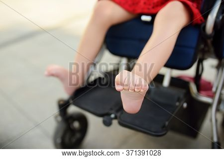 Disabled Girl Sitting In Wheelchair. Close Up Photo Of Her Legs Spasticity Muscles . Child Cerebral