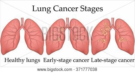 Vector Medical Illustration Of Human Lung Cancer Development Process. Stages Of Lung Cancer From Hea