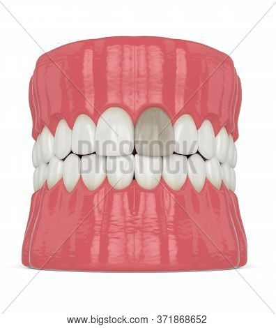 3d Render Of Jaw And Upper Incisor Tooth With Dead Pulp