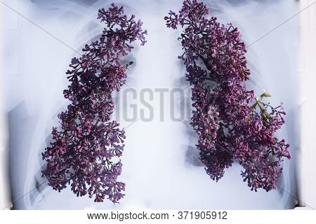 X-ray Of The Lungs, Sprouting With Pink Flowers In The Form Of The Lungs. Medical Concept Of Lung Di