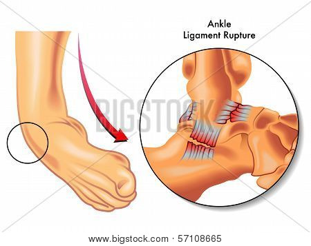Ankle Ligament Rupture.eps