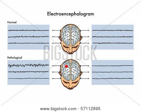 Electroencephalogram.eps