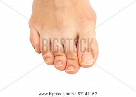 Closeup Of  Human Foot  With A Cracked And Peeling Toe Nail On The Largest Toe