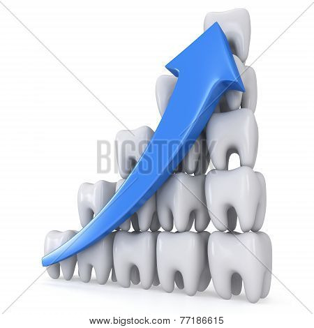 3D Teeth Bar Graph With Blue Arrow