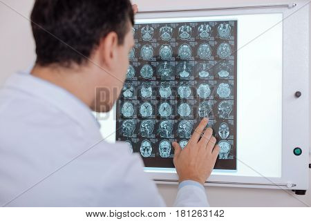 Brain radiograph. Professional serious male doctor standing in front of the Z ray image and looking at it while putting a diagnosis
