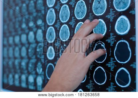 Problems with brain. Close up of a doctors hand pointing at the brain while finding the source of the problem