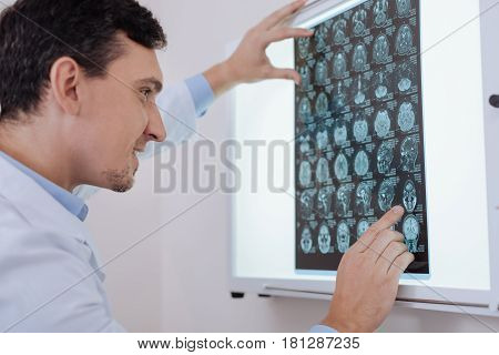 This is it. Cheerful professional handsome oncologist looking at the MRI scan photo and pointing at one of the pictured while knowing how to deal with a problem