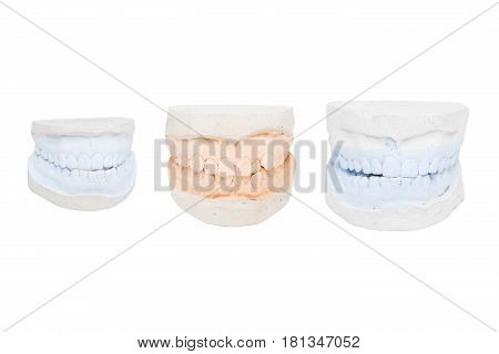 Dental casts from gypsum for braces on teeth