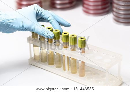 Test-tubes with yellow liquid in the laboratory. Medical research