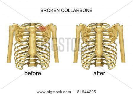 vector illustration of a broken collarbone. recovery