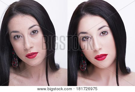 Young Woman, Before And After Retouch, Beauty Treatment. Before And After Cosmetic Operation. Anti-a