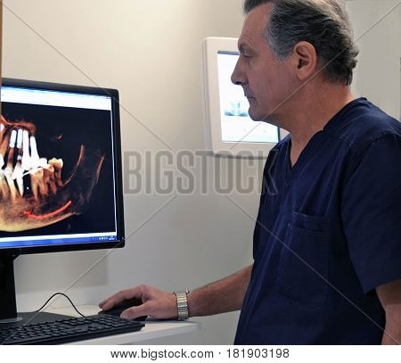 Dentist doctor using a three-dimensional dental panoramic x-ray scan on computer image machine.