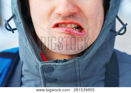 Cracked Dry Lips Of Mans Face. The Mans Face Contorts In Pain Dry Mouth And Skin. Care For Chapped L