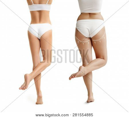 Two Young Thick And Thin Women Have Different Figures. Comparison Concept. Slim And Fat Girls. Fat L