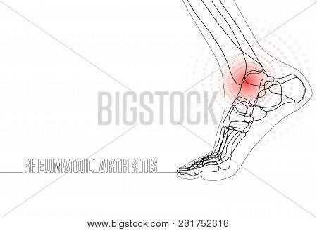 White Horizontal Continuous Line Drawing Concept Banner About Rheumatoid Arthritis. Linear Bones Joi