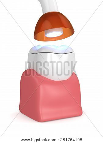 3D Render Of Tooth With Dental Polymerization Lamp And Light Cured Onlay