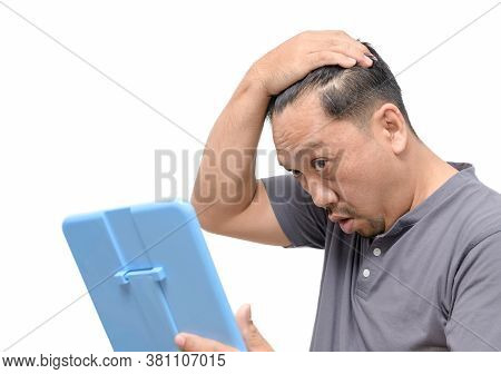 The Middle Aged Man Was Extremely Worried About Gray Hair And Hair Loss Isolated On White Background