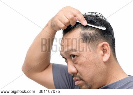 Middle-aged Asian Man Worry About His  Hair Loss Or Alopecia And Grey Hair Isolated On White Backgro