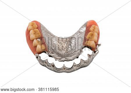 Removable Partial Metal Denture Swinglock Type On White Background With Clipping Path.