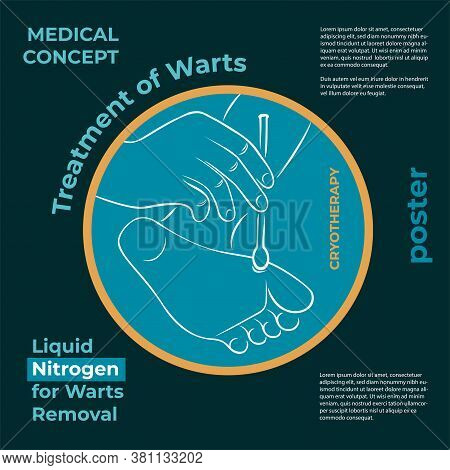 Medical Poster. Round Icon About The Treatment Of Warts. Burning A Wart With Liquid Nitrogen. A Hand