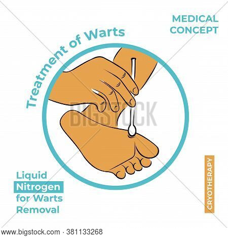 Round Icon About The Treatment Of Warts. Burning A Wart With Liquid Nitrogen. A Hand Holds A Stick W