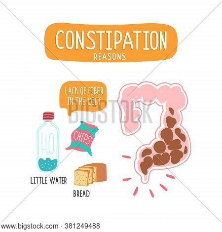 Illustration Of The Foods With Low Fiber Content.  Large Intestine With Fecal Masses, Intestinal Obs