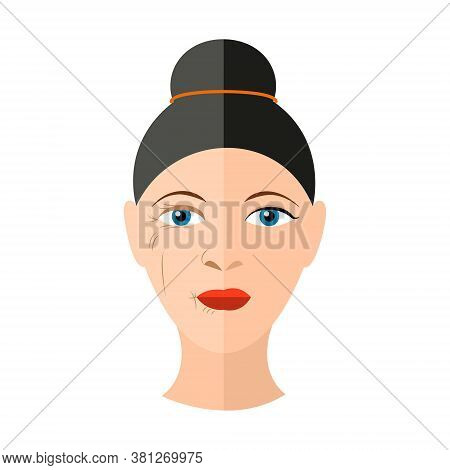 Vector Illustration Before And After Face Lifting Isolated Image With Two Halves Of Female Face With
