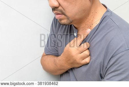 A Middle Aged Man Pointed A Finger At Skin Tags Or Acrochordon On His Neck On White Background.skin