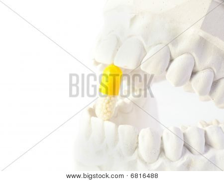 A plaster cast of teeth with with a yellow pill. All on white background. poster