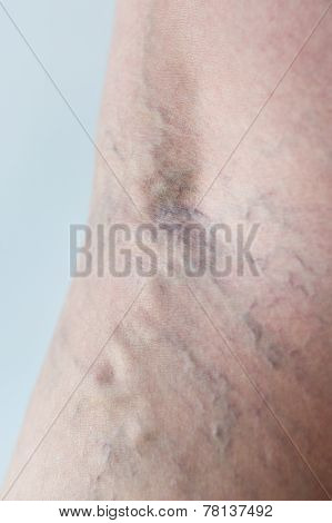 Varicose Veins Close-up