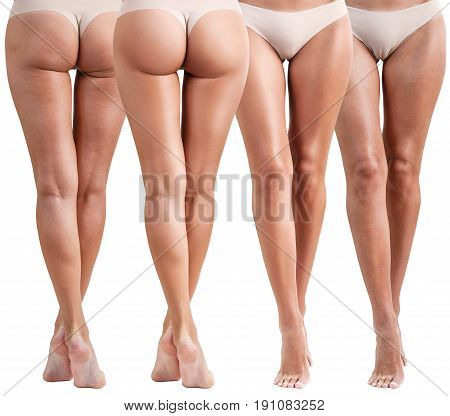 Collage of female buttocks and hips before and after treatment. Cellulite problem concept.