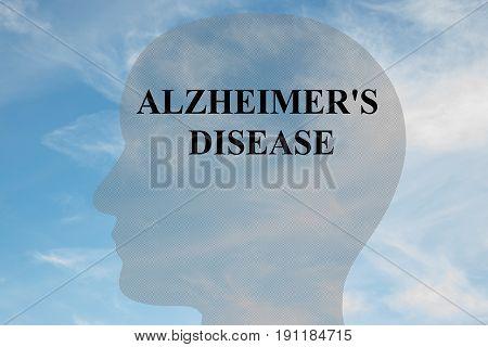 Alzheimer's Disease - Mental Concept