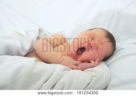 funny baby facenewborn with jaundice on white blanket infant healthcare concept