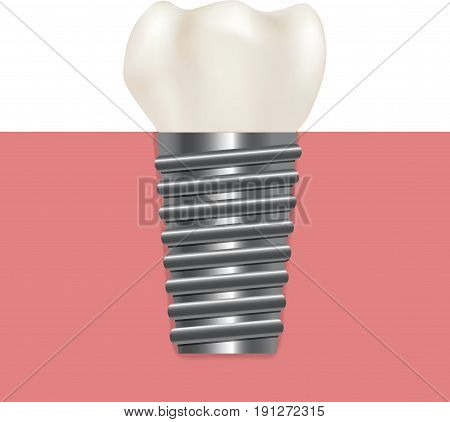 Realistic Human Dental Implant Stomatology Health Care Concept for Web and App. Vector illustration