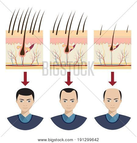 Hair loss stages with male portraits. Vector illustration.