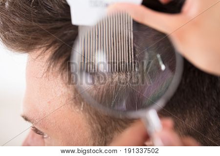 Close-up Of Dermatologist Looking At Male Patient's Hair Through Magnifying Glass