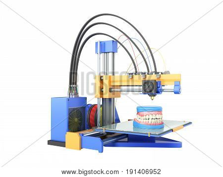 The Concept Of Dental Prosthetics Denture To 3D Printers 3D Render On A White Background No Shadow